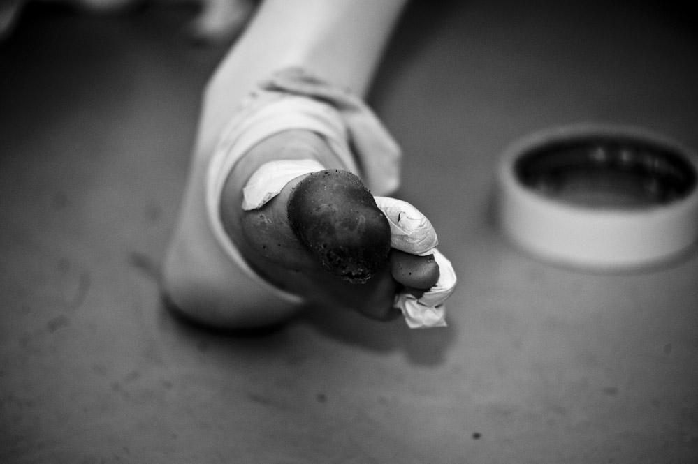 Ballet dancer toes