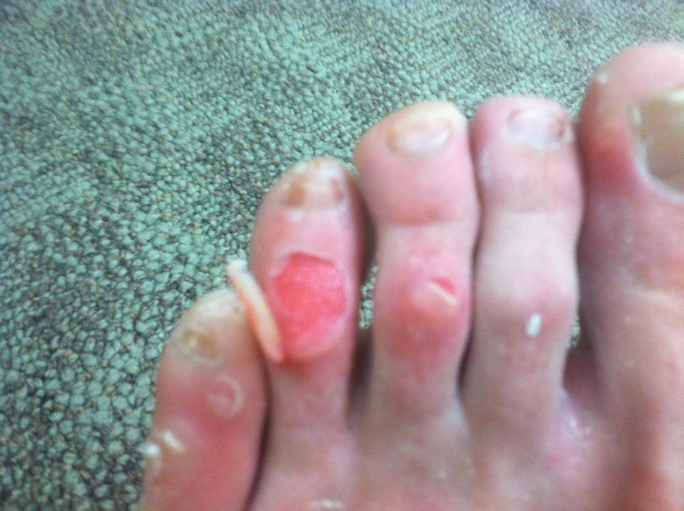 image Prettiest feet on the net
