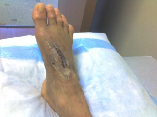 Maria Chapman's foot, post-surgery.